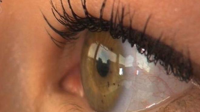 Le kératocône est une déformation de la cornée qui brouille la vue du malade (Image d'illustration)
