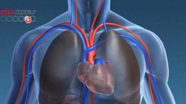 Le VIH augmenterait le risque d'infarctus