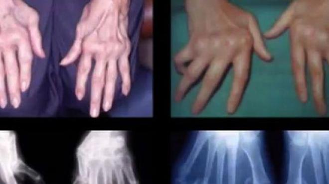Polyarthrite rhumatoïde : les mains et les poignets en première ligne