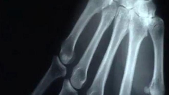 Ch@t : Tout savoir sur l'arthrose