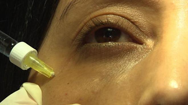 Esthétique des yeux : comment embellir son regard ?
