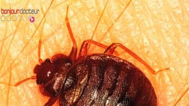 Punaises de lit : les feuilles de haricot inspirent les chercheurs
