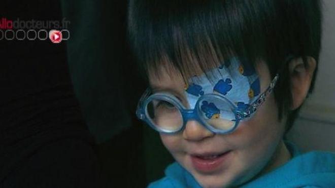 L'amblyopie ou le syndrome de l'oeil paresseux