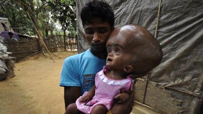 Inde : l'opération de la fillette hydrocéphale est un succès
