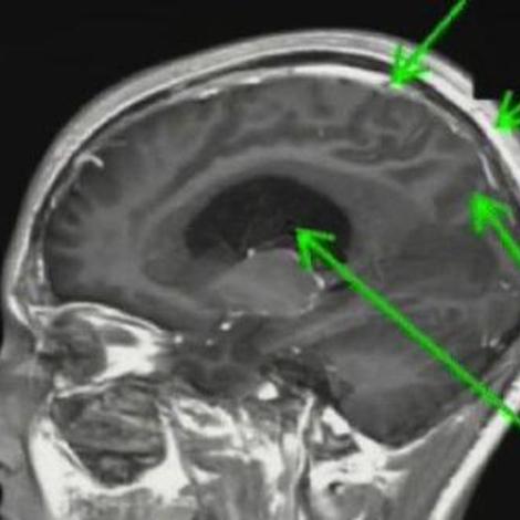 Hydrocéphalie, une tête qui grossit