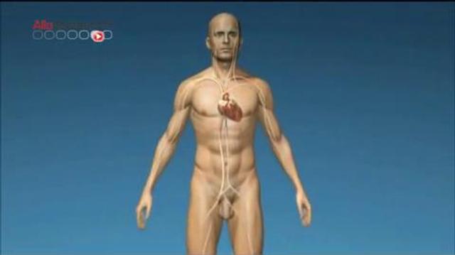 Nouvelle implantation d'un coeur artificiel Carmat